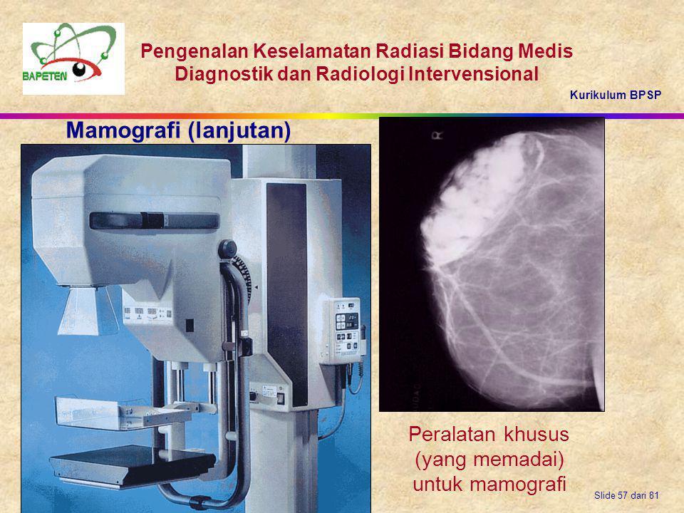 Mamografi (lanjutan) Peralatan khusus (yang memadai) untuk mamografi