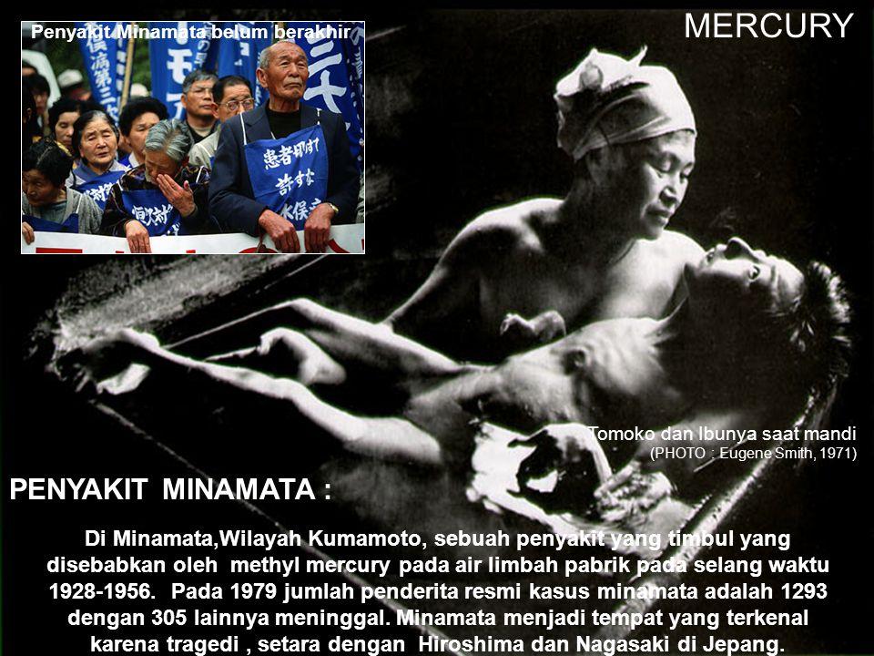 MERCURY PENYAKIT MINAMATA :