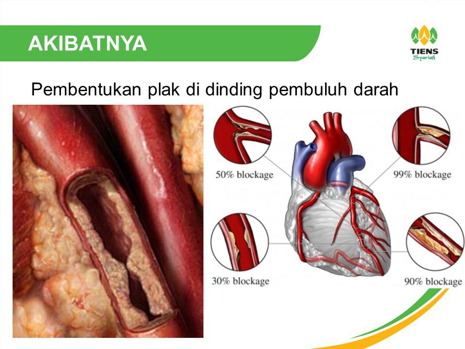 Pembentukan plak di dinding pembuluh darah