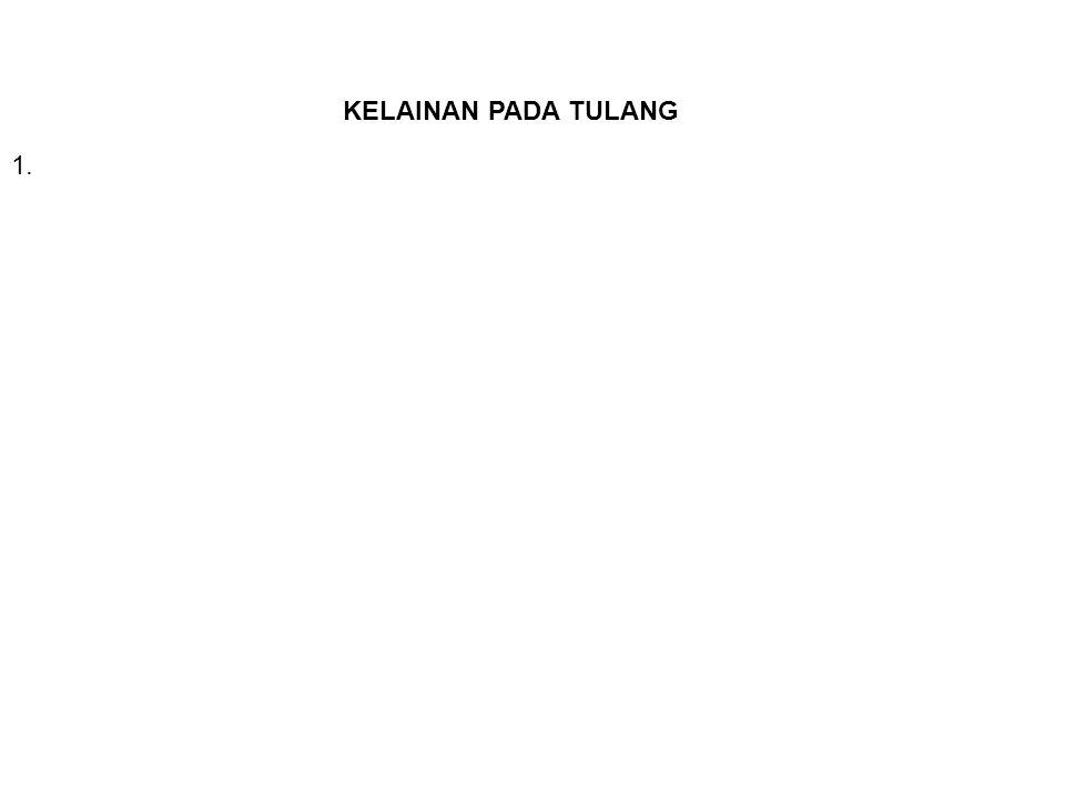 KELAINAN PADA TULANG 1.