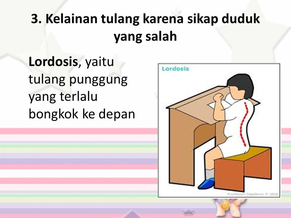 3. Kelainan tulang karena sikap duduk yang salah