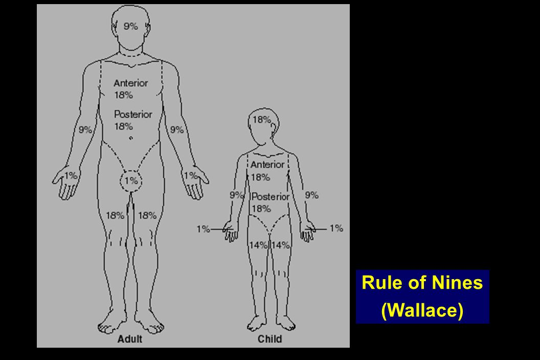 Rule of Nines (Wallace)