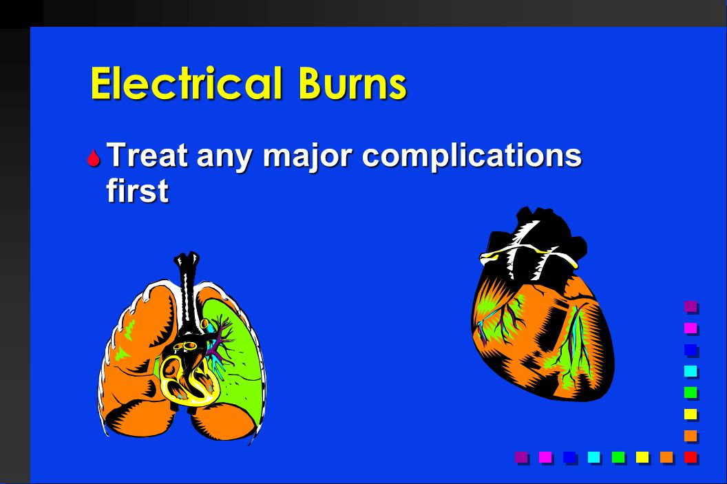 Electrical Burns Treat any major complications first