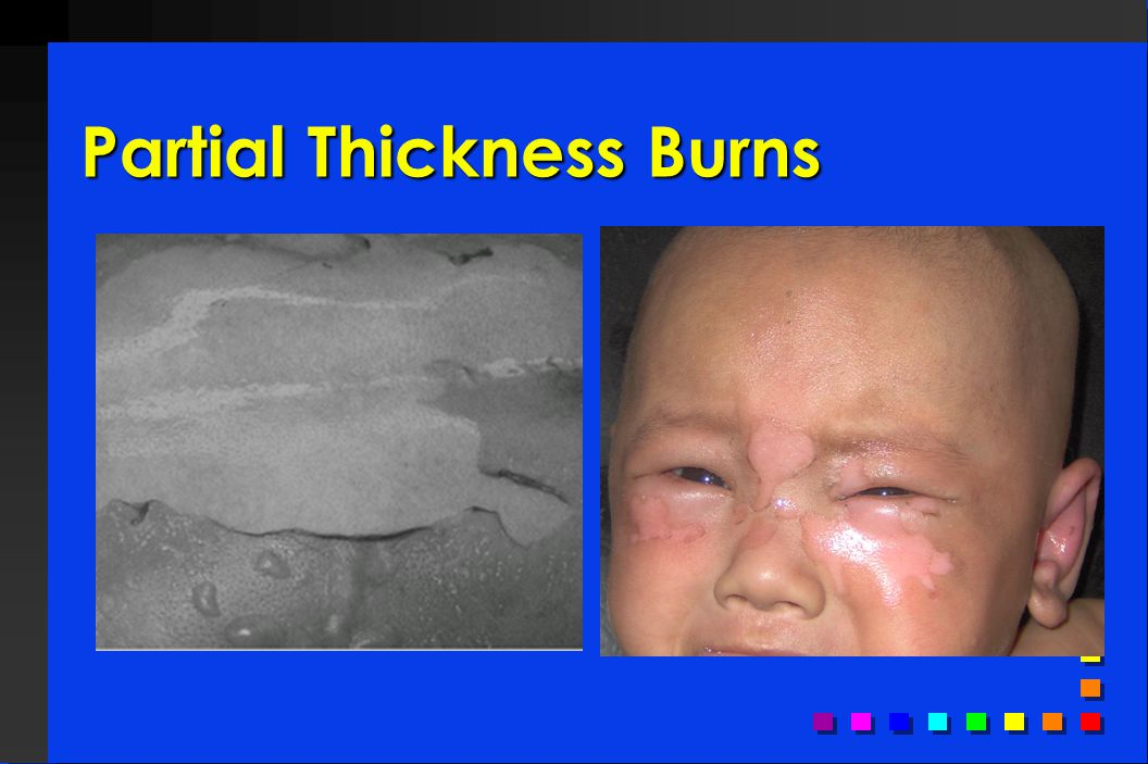 Partial Thickness Burns