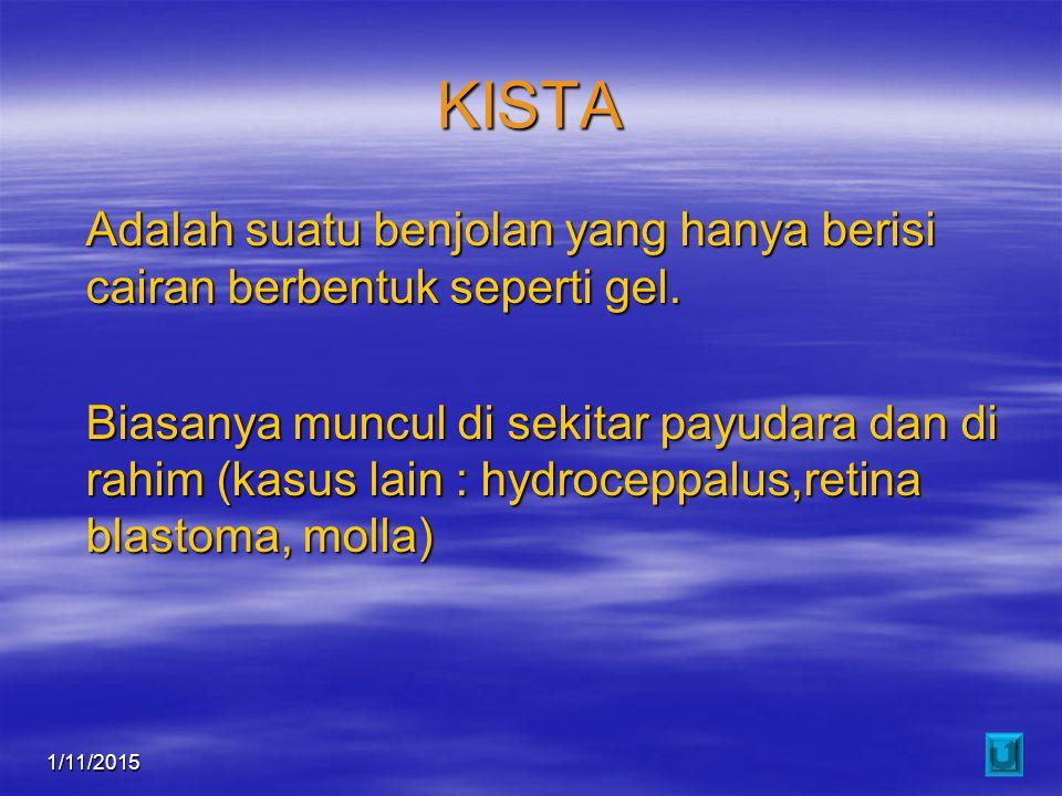 KISTA Adalah suatu benjolan yang hanya berisi cairan berbentuk seperti gel.