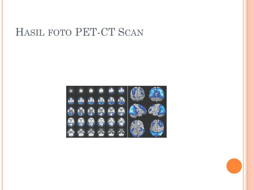 Hasil foto PET-CT Scan