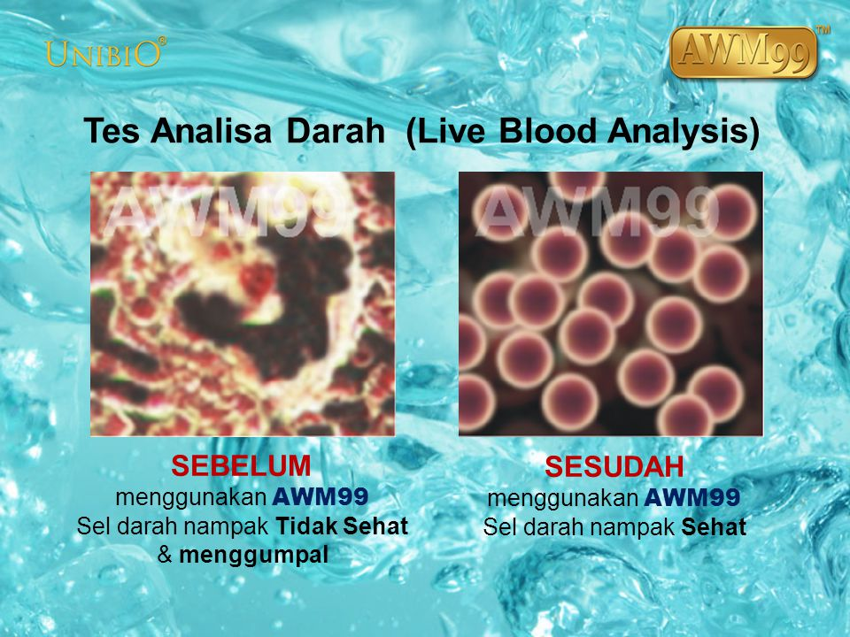 Tes Analisa Darah (Live Blood Analysis)