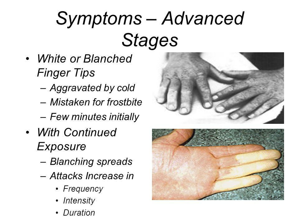 Symptoms – Advanced Stages
