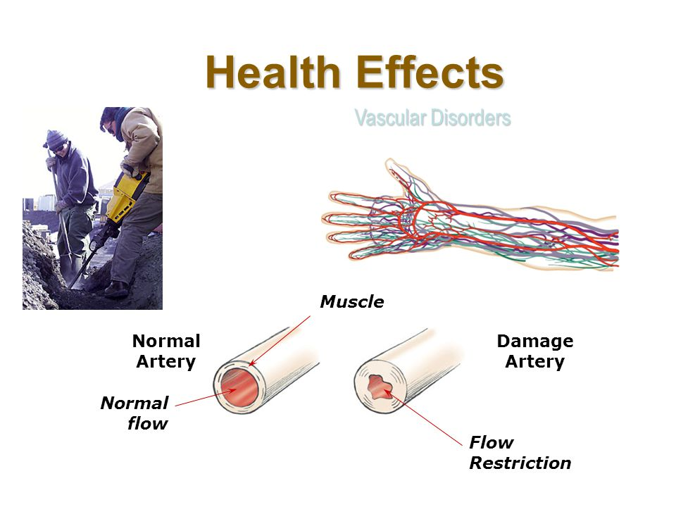 Health Effects Vascular Disorders Muscle Normal Artery Damage Artery