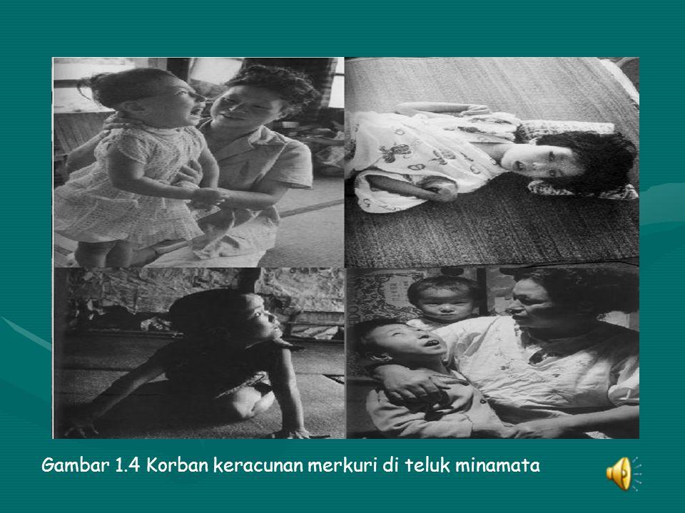 Gambar 1.4 Korban keracunan merkuri di teluk minamata