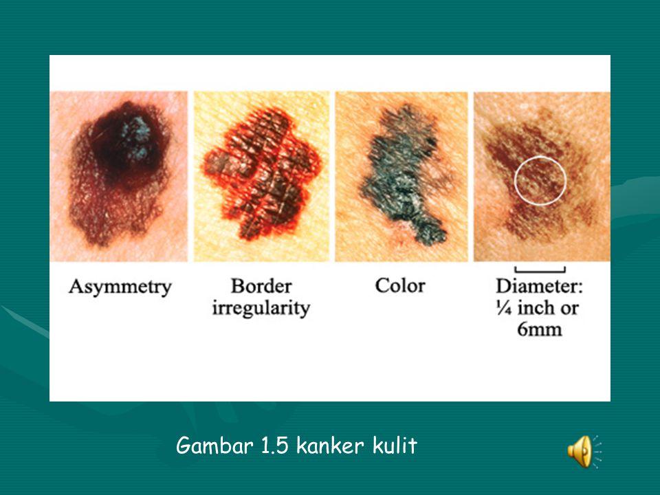 Gambar 1.5 kanker kulit