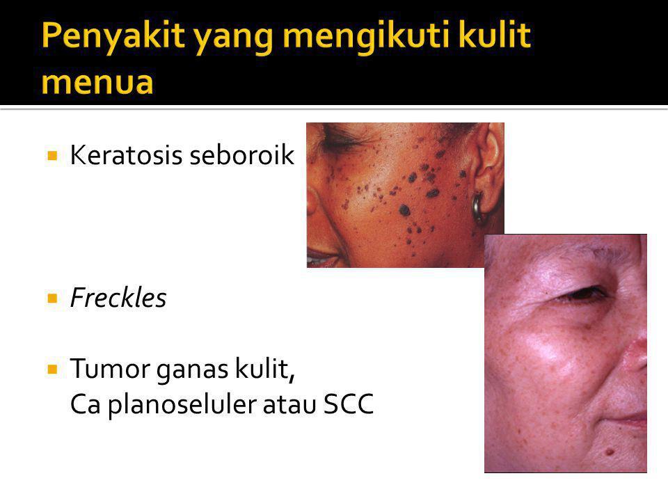 Penyakit yang mengikuti kulit menua