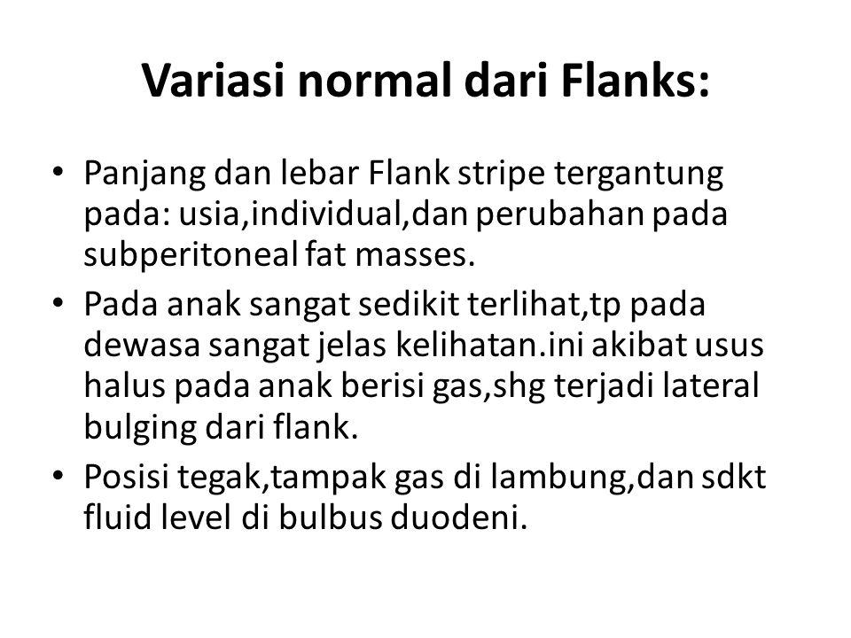 Variasi normal dari Flanks: