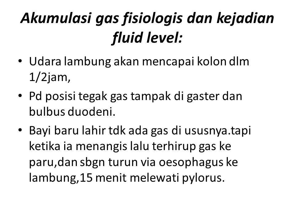 Akumulasi gas fisiologis dan kejadian fluid level: