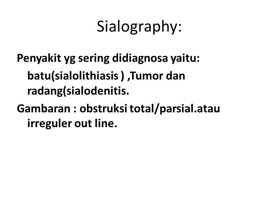 Sialography: