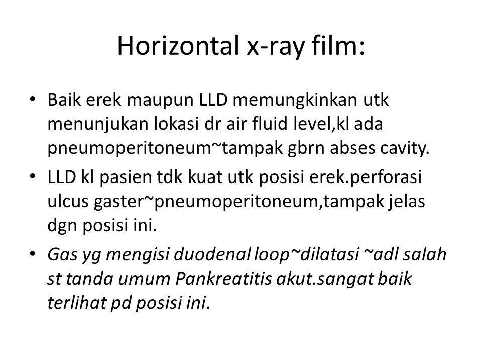 Horizontal x-ray film: