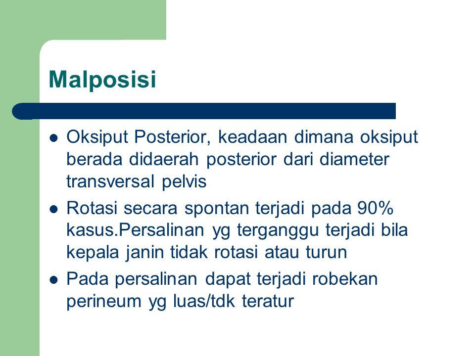 Malposisi Oksiput Posterior, keadaan dimana oksiput berada didaerah posterior dari diameter transversal pelvis.