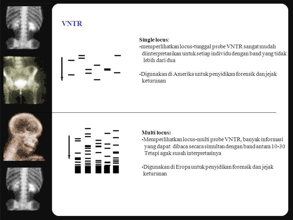 VNTR Single locus: memperlihatkan locus-tunggal probe VNTR sangat mudah. diinterpretasikan untuk setiap individu dengan band yang tidak.