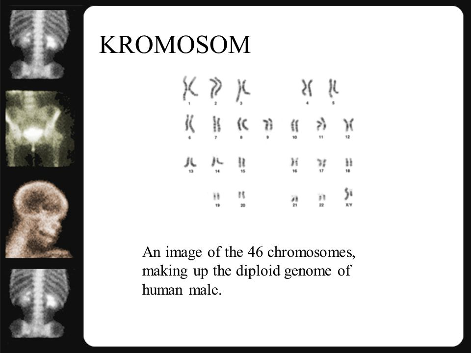 KROMOSOM An image of the 46 chromosomes, making up the diploid genome of human male.