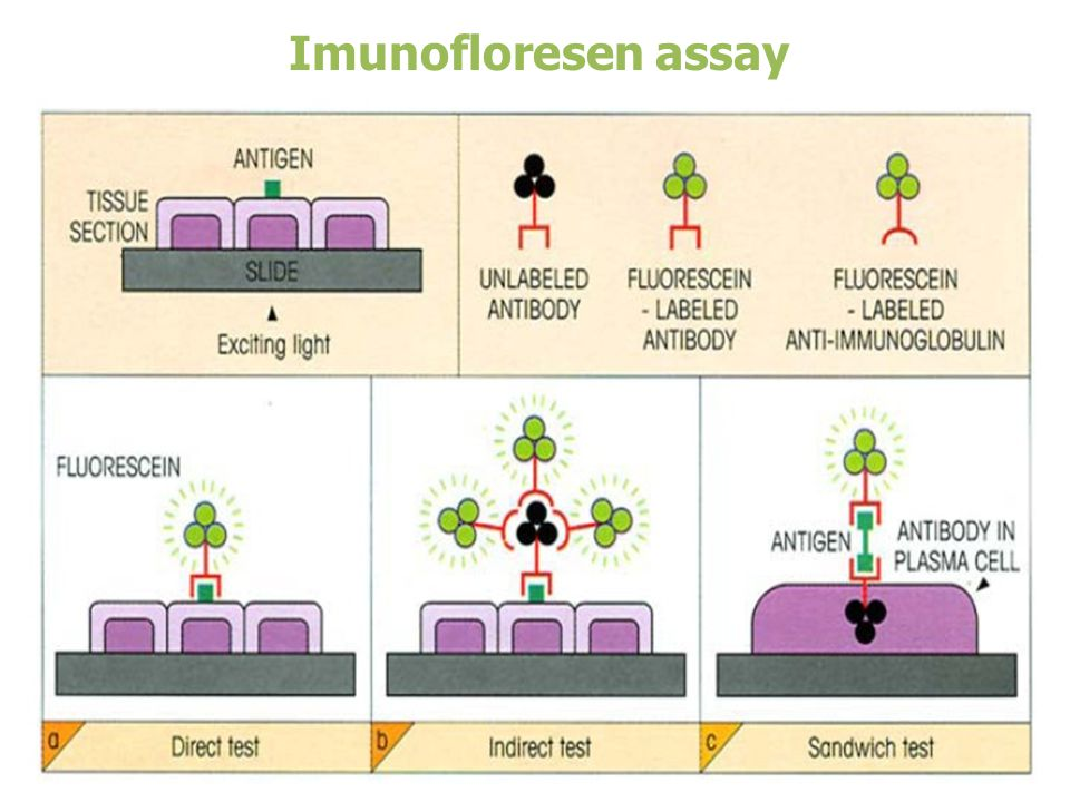 Imunofloresen assay
