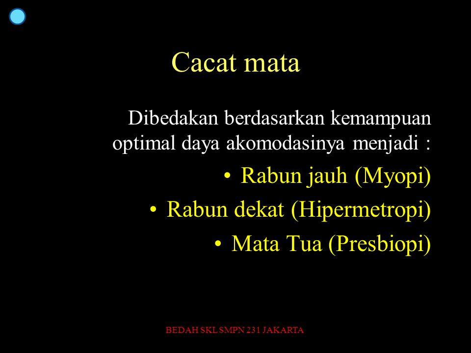Cacat mata Rabun jauh (Myopi) Rabun dekat (Hipermetropi)