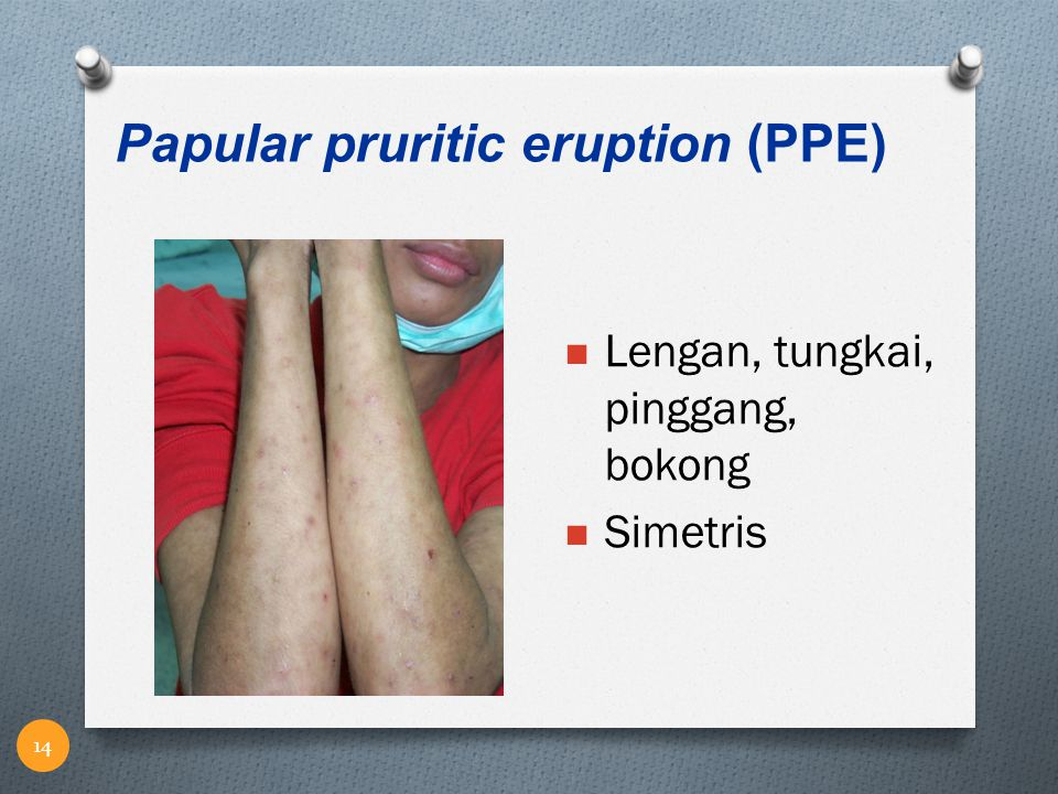 Papular pruritic eruption (PPE)