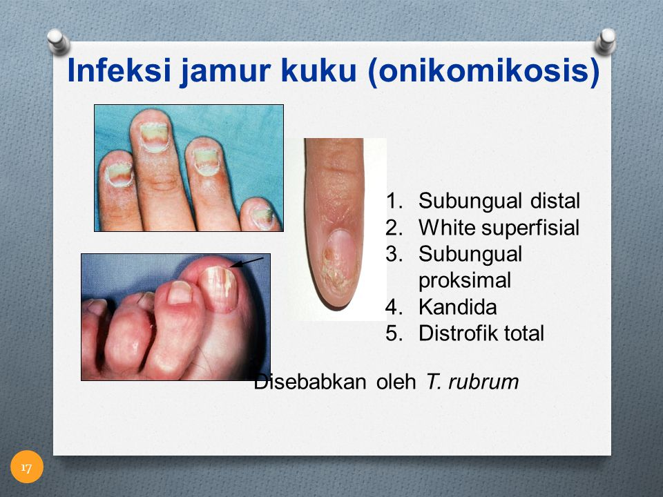 Infeksi jamur kuku (onikomikosis)