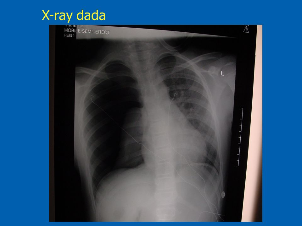 X-ray dada