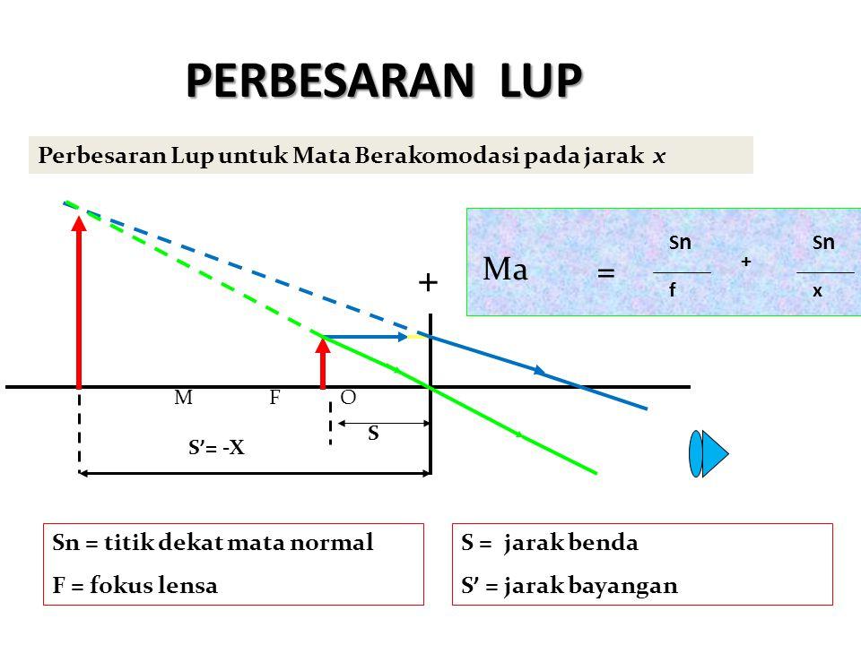 PERBESARAN LUP Perbesaran Lup untuk Mata Berakomodasi pada jarak x. Sn. Sn. Ma. = + + f. x.