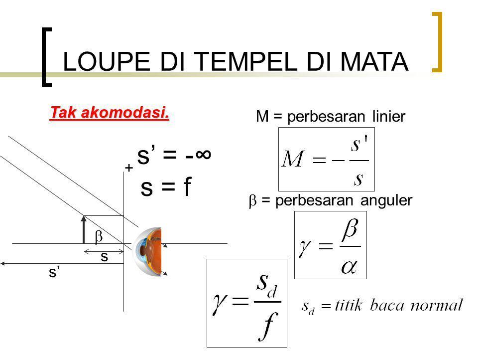 LOUPE DI TEMPEL DI MATA s' = -∞ s = f Tak akomodasi.