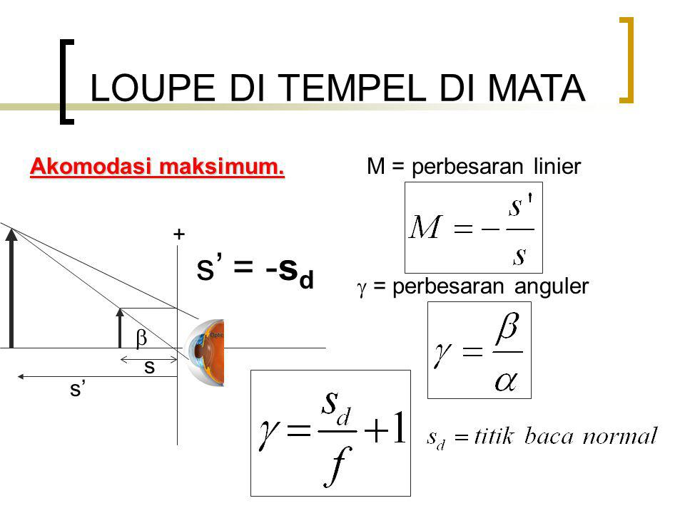 LOUPE DI TEMPEL DI MATA s' = -sd Akomodasi maksimum.