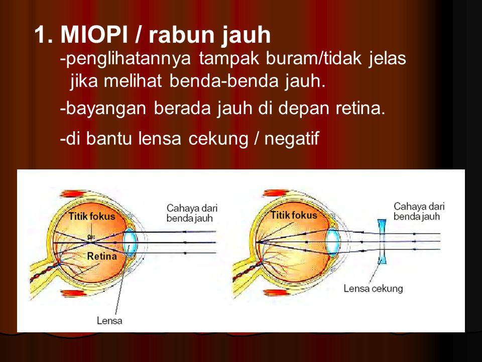 1. MIOPI / rabun jauh -penglihatannya tampak buram/tidak jelas