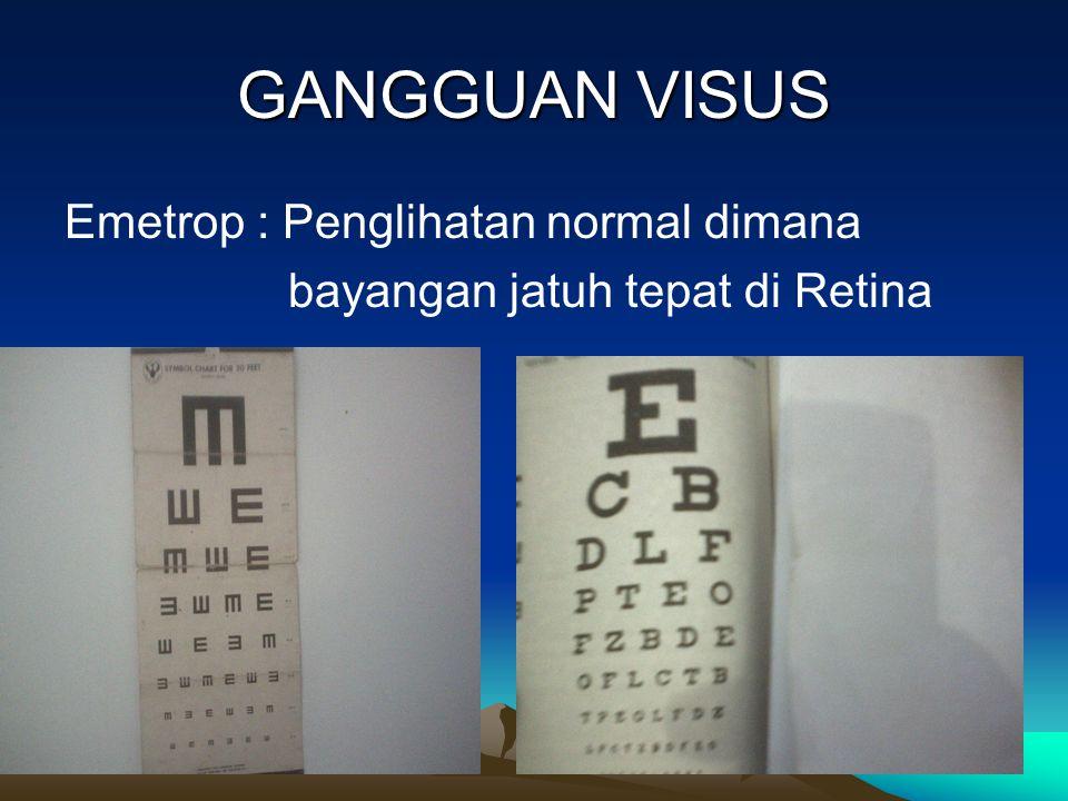 GANGGUAN VISUS Emetrop : Penglihatan normal dimana