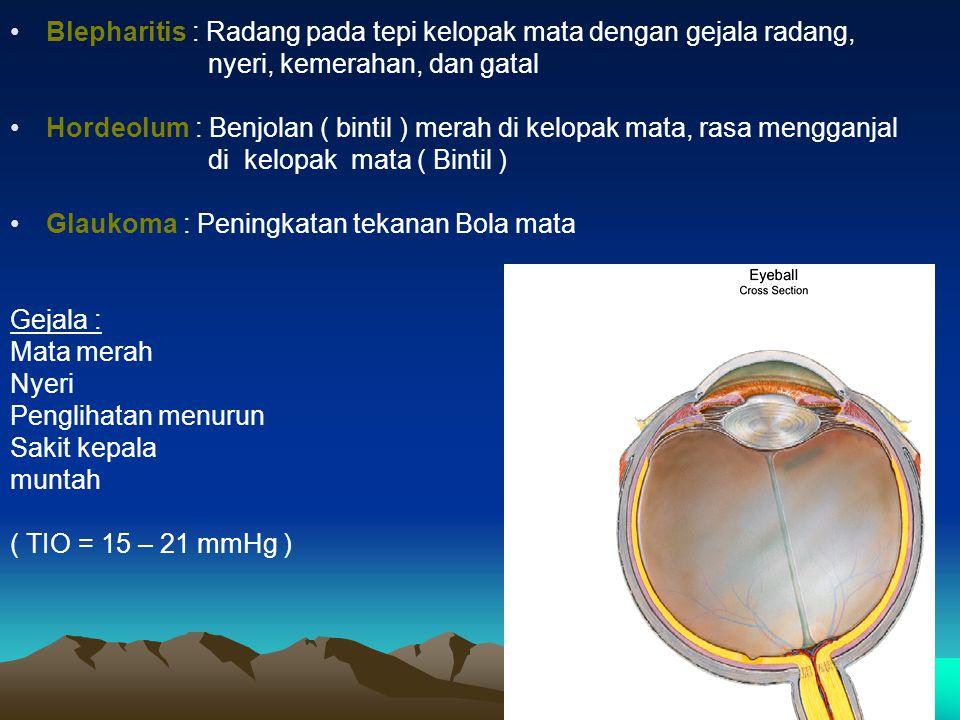 Blepharitis : Radang pada tepi kelopak mata dengan gejala radang,