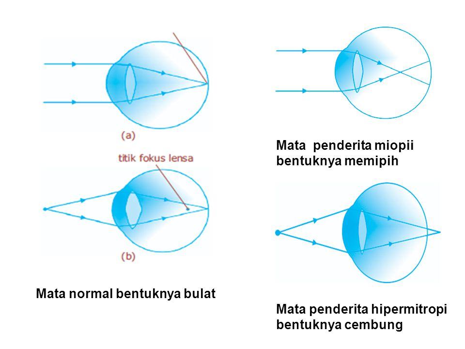 Mata penderita miopii bentuknya memipih