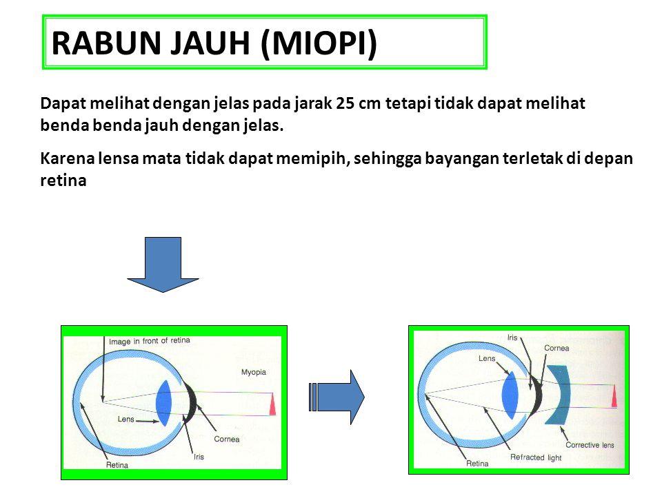 RABUN JAUH (MIOPI) Dapat melihat dengan jelas pada jarak 25 cm tetapi tidak dapat melihat benda benda jauh dengan jelas.