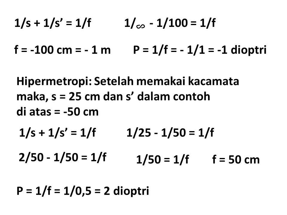 1/s + 1/s' = 1/f 1/ - 1/100 = 1/f. f = -100 cm = - 1 m. P = 1/f = - 1/1 = -1 dioptri.