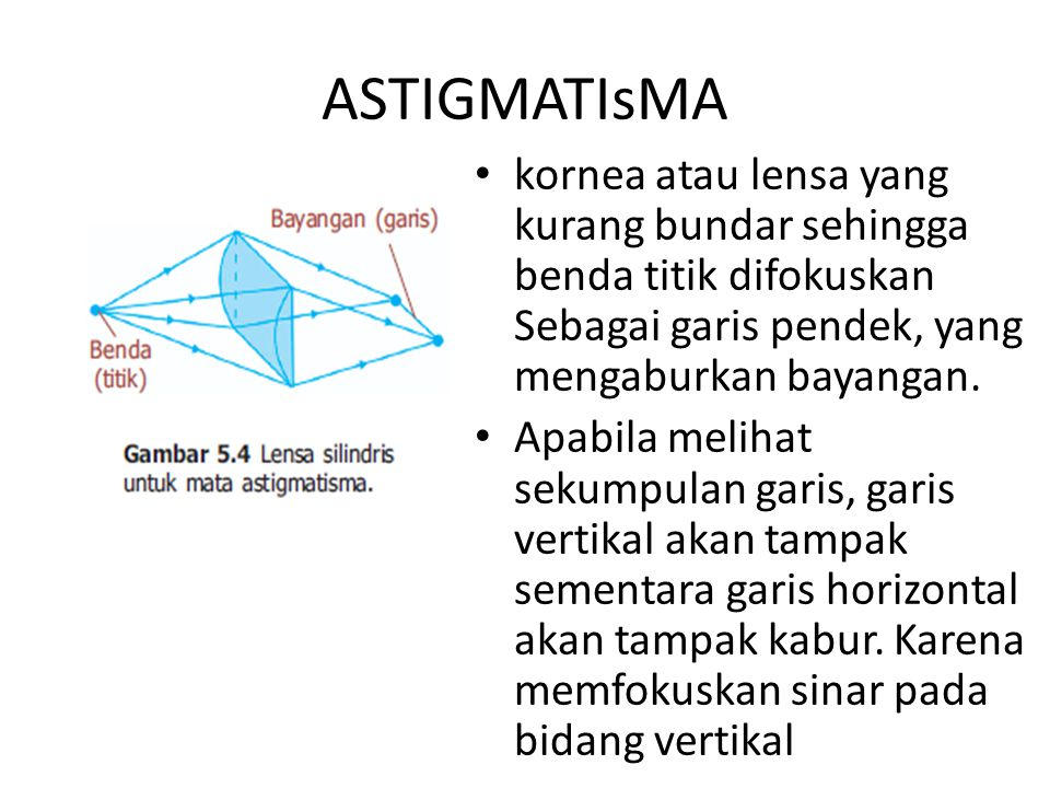 ASTIGMATIsMA kornea atau lensa yang kurang bundar sehingga benda titik difokuskan Sebagai garis pendek, yang mengaburkan bayangan.