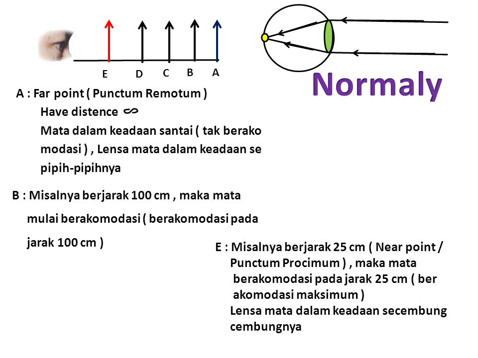 Normaly A : Far point ( Punctum Remotum ) Have distence