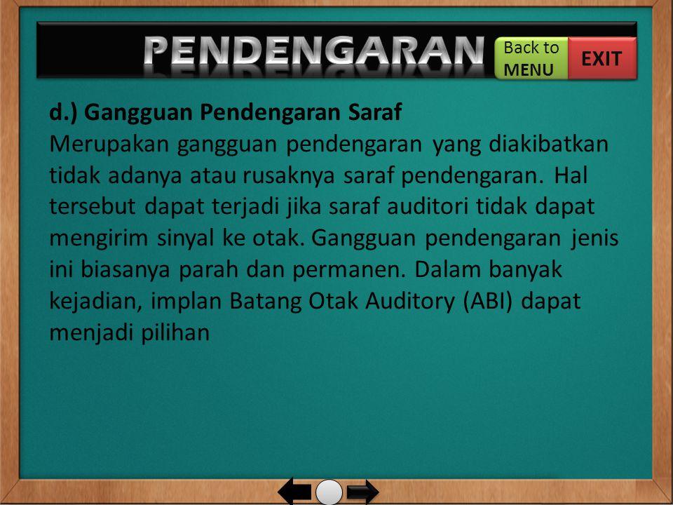 PENDENGARAN … d.) Gangguan Pendengaran Saraf