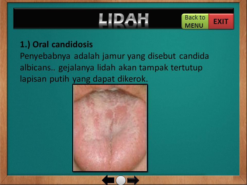LIDAH 1.) Oral candidosis