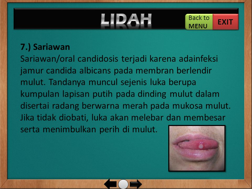 LIDAH Back to. MENU. EXIT.