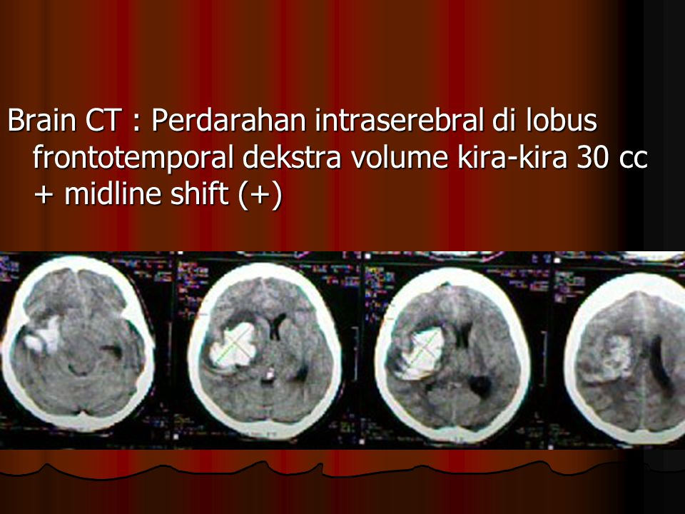 Brain CT : Perdarahan intraserebral di lobus frontotemporal dekstra volume kira-kira 30 cc + midline shift (+)