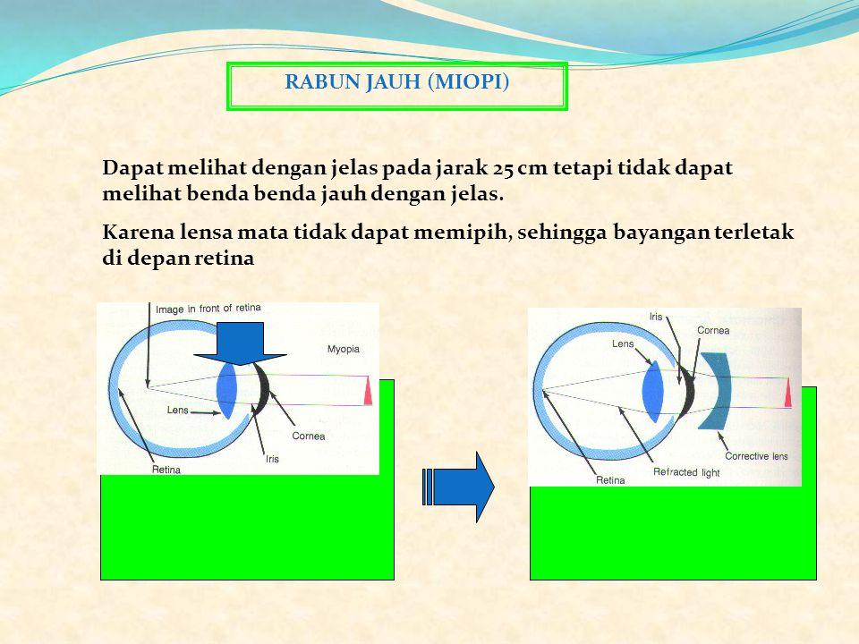 Alat Optik RABUN JAUH (MIOPI)