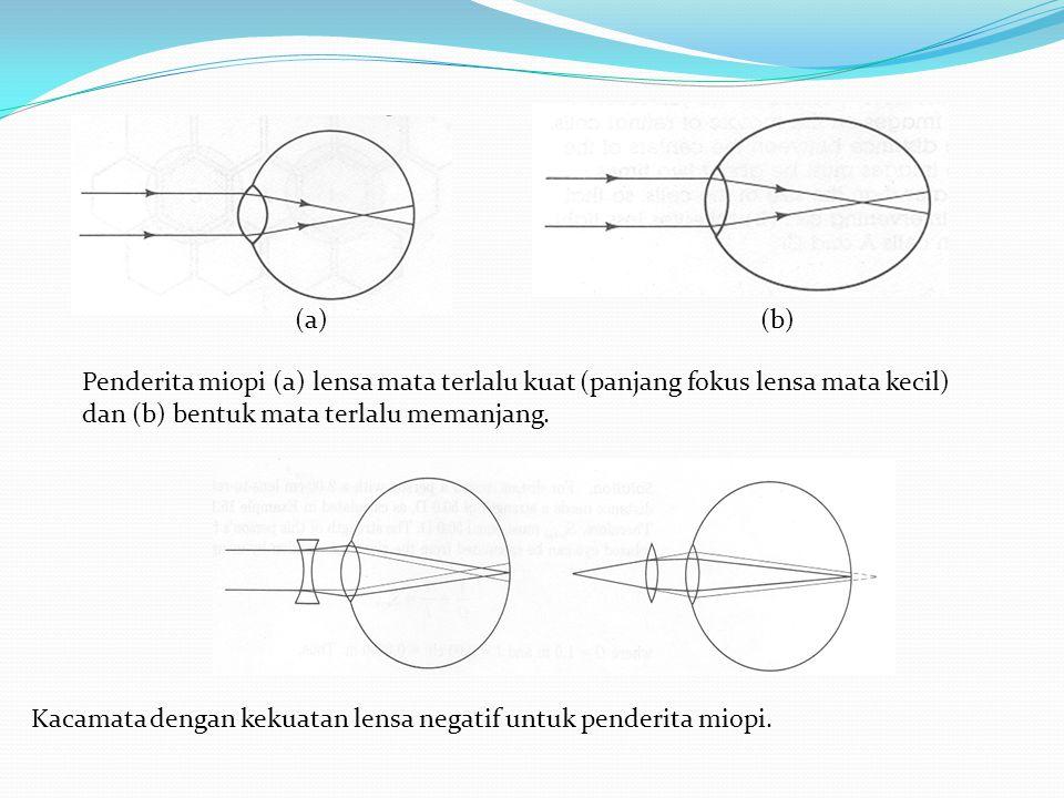 (a) (b) Penderita miopi (a) lensa mata terlalu kuat (panjang fokus lensa mata kecil) dan (b) bentuk mata terlalu memanjang.