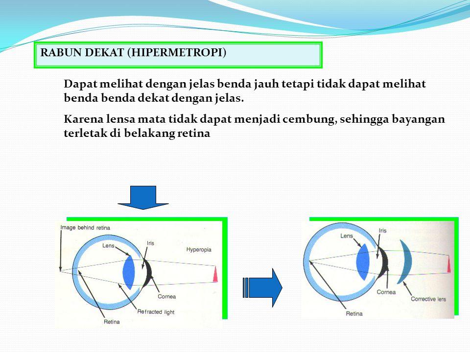 Alat Optik RABUN DEKAT (HIPERMETROPI)