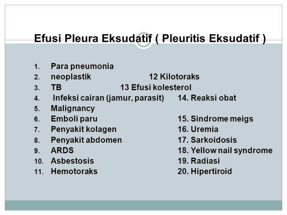 Efusi Pleura Eksudatif ( Pleuritis Eksudatif )