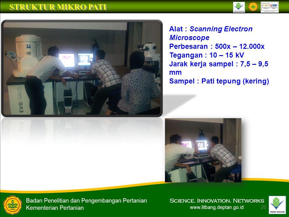 STRUKTUR MIKRO PATI Alat : Scanning Electron Microscope