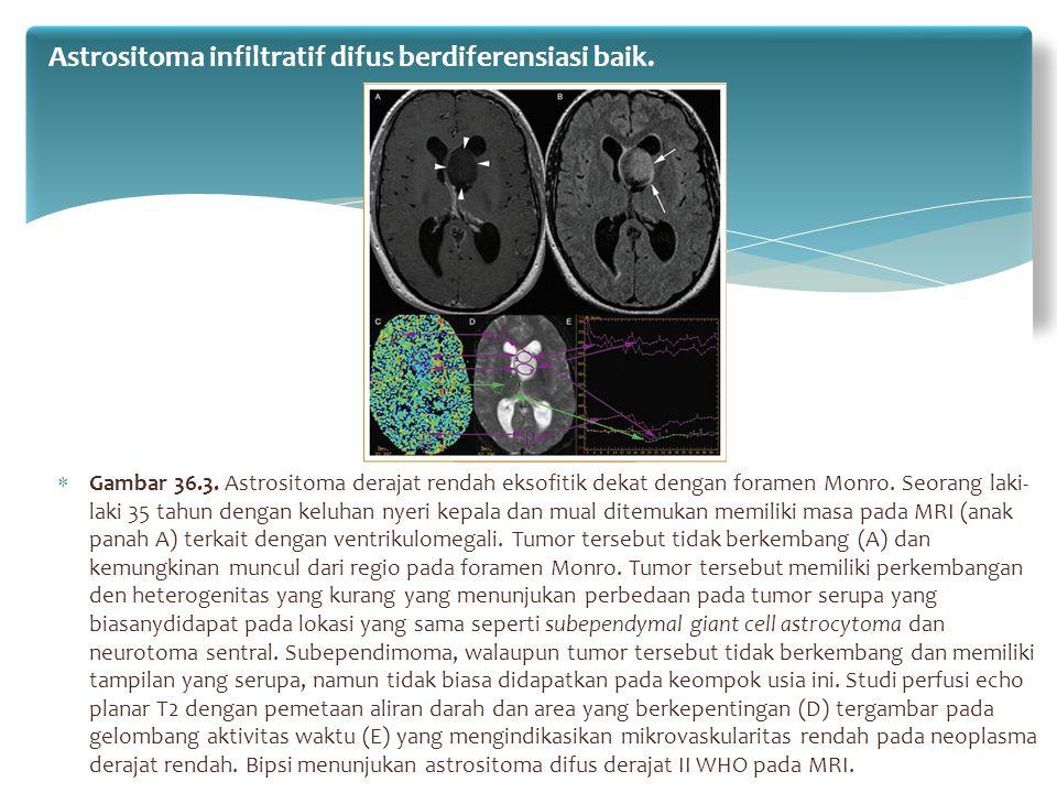 Astrositoma infiltratif difus berdiferensiasi baik.