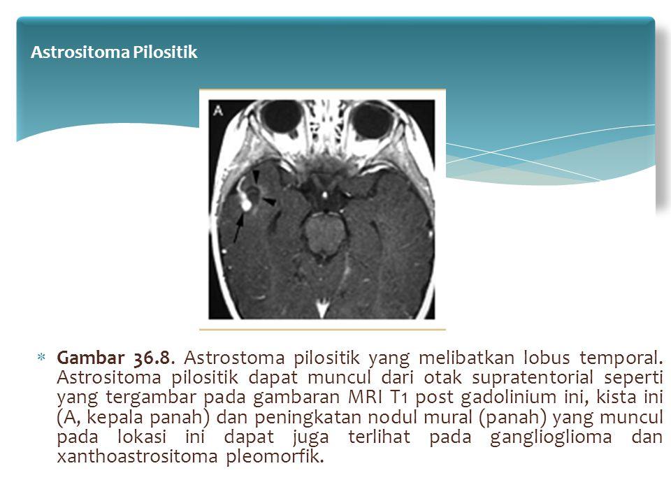 Astrositoma Pilositik